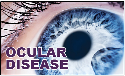OCULAR-DISEASE